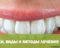 Признаки, виды и методы лечения кариеса на передних зубах