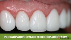 Реставрация зубов фотополимерами