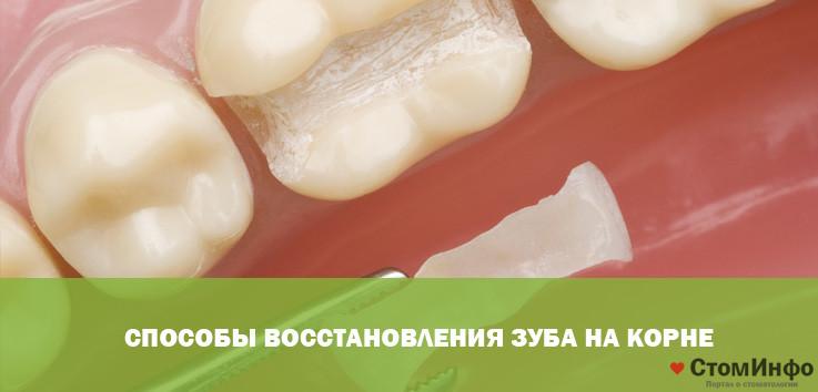 Способы восстановления зуба на корне