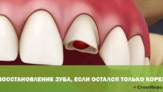 Восстановление зуба, если остался только корень