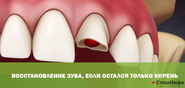 Можно ли восстановить, нарастить разрушенный зуб если остался только корень