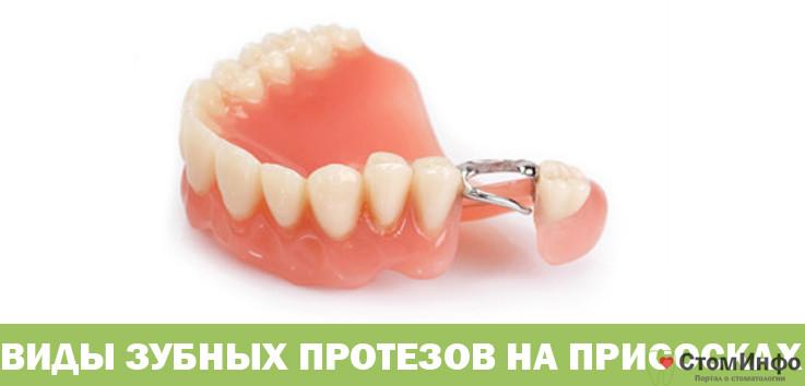Виды зубных протезов на присосках