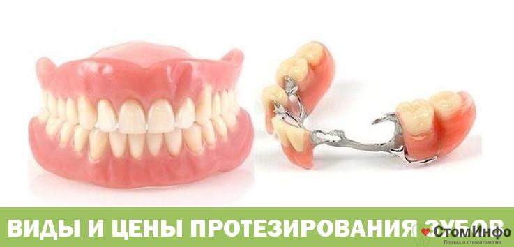 Виды и цены протезирования зубов
