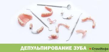 Депульпирование зуба перед протезированием