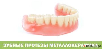 Зубные протезы металлокерамика