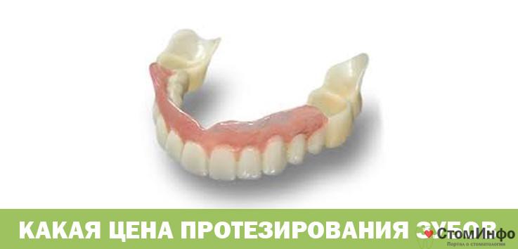 Какая цена протезирования зубов при отсутствии зубов