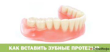 Как вставить зубные протезы