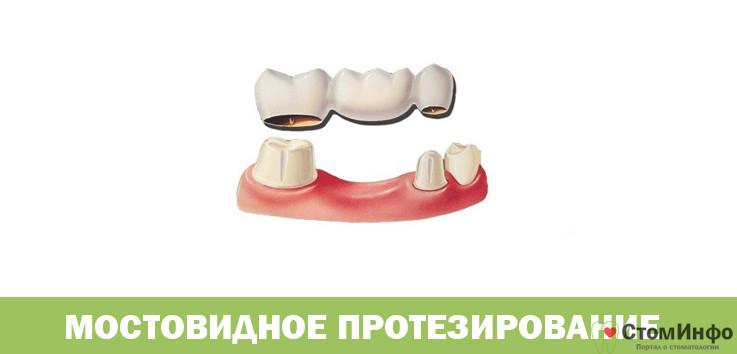 Мостовидное протезирование