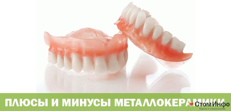 Плюсы и минусы металлокерамики