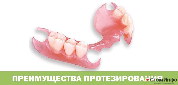 Процедура протезирования зубов-на дому и ее преимущества