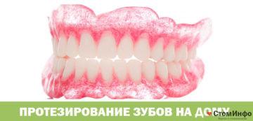 Протезирование зубов на дому