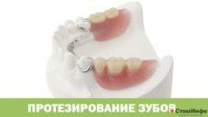 Протезирование зубов при отсутствиизубов цена