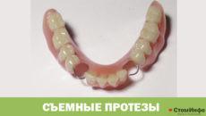 Протезирование зубов съемные протезы