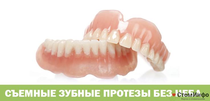 Зубные протезы на присосках без неба
