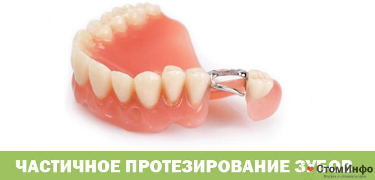 Частичное протезирование зубов способы фиксации и стабилизации