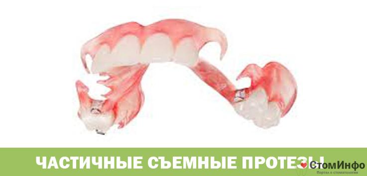 Частичные съемные протезы популярные виды и их особенности