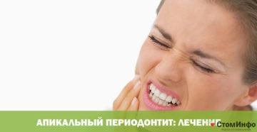 Апикальный периодонтит: лечение