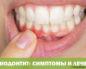 Периодонтит: симптомы и лечение