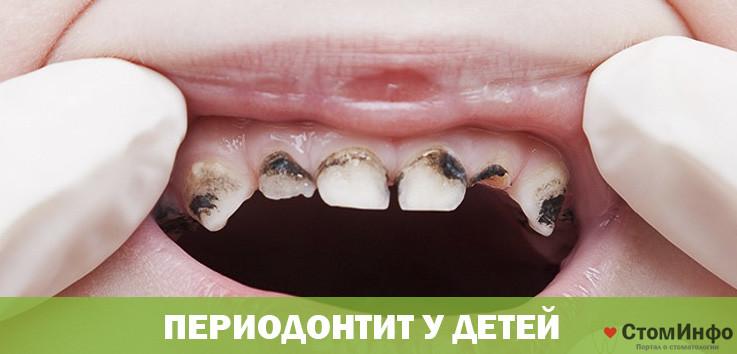 Лечение периодонтита постоянных зубов у детей