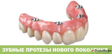 Зубные протезы нового поколения: цена
