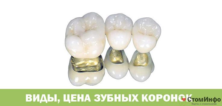 Виды цена зубных коронок