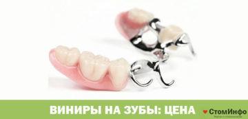 Виниры на зубы цена