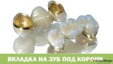 Вкладка на зуб под коронку