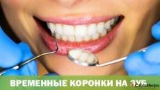 Временные коронки на зуб