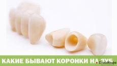 Какие бывают коронки на зуб