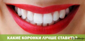 Какие коронки лучше ставить на передние зубы
