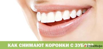 Как снимают коронки с зубов