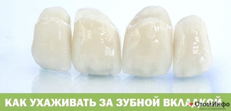 Как ухаживать за зубной вкладкой