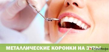 Металлические коронки на зубы