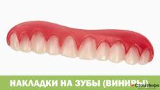 Накладки на зубы (виниры)