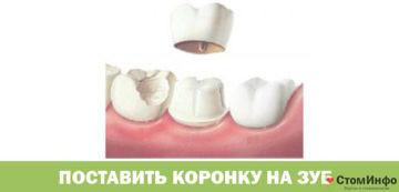 Поставить коронку на зуб