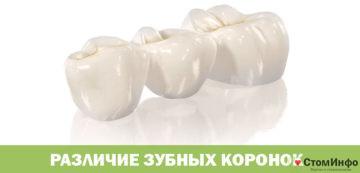 Различие зубных коронок