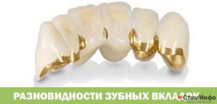 Разновидности зубных вкладок