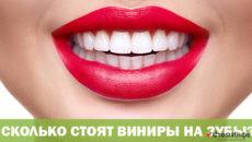 Сколько стоят виниры на зубы