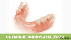 Съемные виниры на зубы