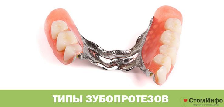 Типы зубопротезов