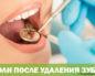 Боли после удаления зуба