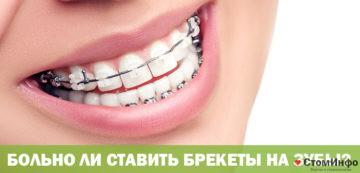 Больно ли ставить брекеты на зубы