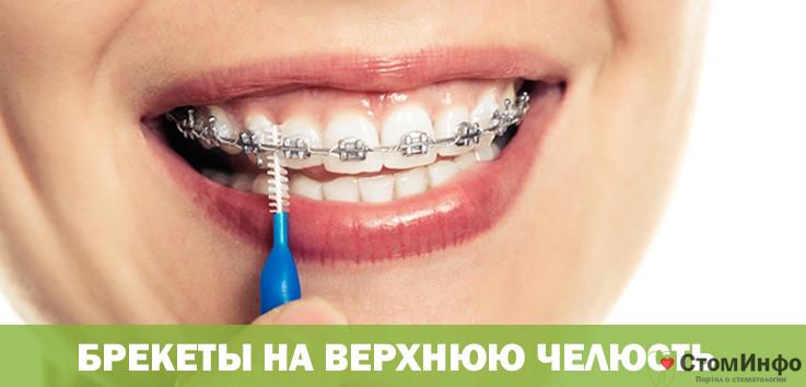 Можно ли брекеты ставить на одну челюсть