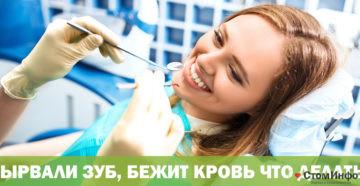 Вырвали зуб бежит кровь что делать