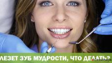 Лезет зуб мудрости что делать