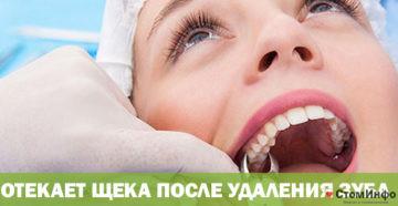 Отекает щека после удаления зуба