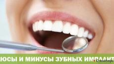 Плюсы и минусы зубных имплантов
