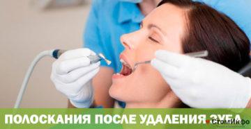 Полоскания после удаления зуба