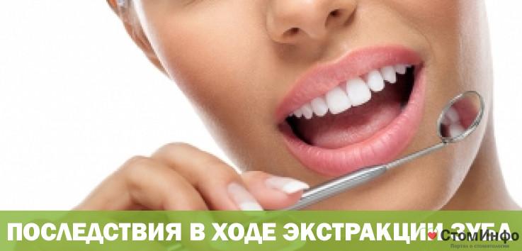 Последствия в ходе экстракции зуба