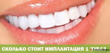 Сколько стоит имплантация 1 зуба